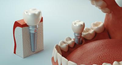 Implants Dentaires Implant dentaire, clinique à l'étranger