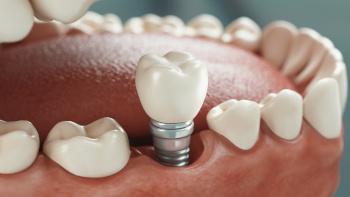Implants dentaires à l'étranger Implant dentaire, clinique