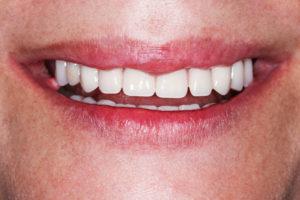 Implants dentaires pour la bouche complète
