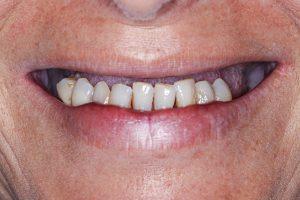 Prothèses dentaires