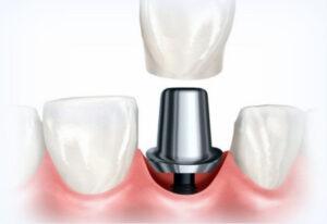 Implant dentaire unique