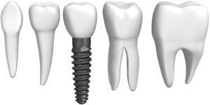 Le implant dentaire