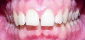 Traitement d`orthodontie
