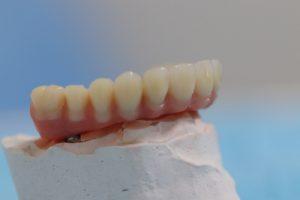 Implants-pour-fixer-les-protheses-dentaires